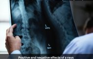 Positive and negative effects of x-rays